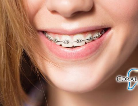 Orthodontists Coral Springs FL