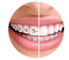 Varieties Of Braces