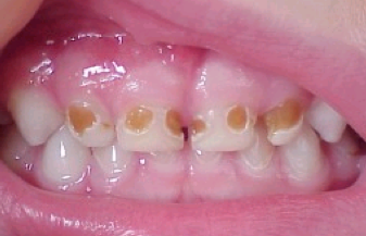 The Most Convenient Dental Office Offering Night And