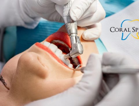 Affordable Teeth Cleaning Coral Springs