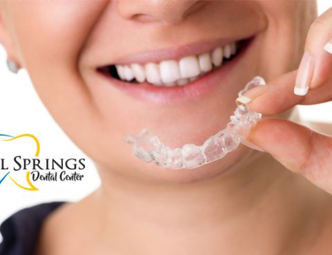 Invisalign in Coral Springs